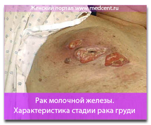Рак молочной железы. Характеристика стадии рака груди