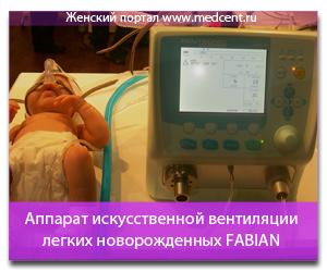 Аппарат искусственной вентиляции легких новорожденных FABIAN. Обзор товара