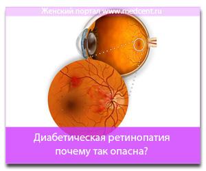 Диабетическая ретинопатия - почему так опасна?
