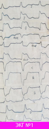 Проникающий инфаркт миокарда задней стенки с распространением на боковую (острый период)