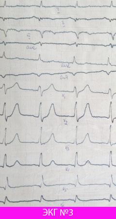 Проникающий инфаркт миокарда задней стенки (подострый период)