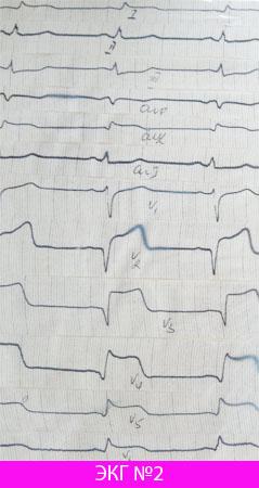 Проникающий распространенный инфаркт миокарда передне-перегородочной локализации