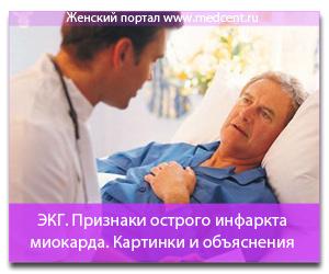 ЭКГ признаки острого инфаркта миокарда. Картинки и объяснения