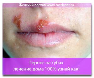 Герпес на губах - лечение дома 100% узнай как!