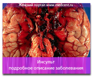 Инсульт: подробное описание заболевания