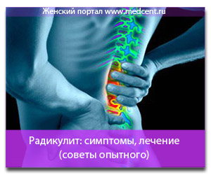 Радикулит: симптомы, лечение (советы опытного)