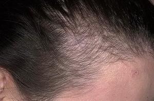Выпадение волос телогеновое 2