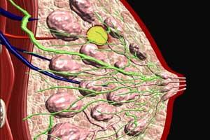 мастопатия-симптомы-лечение1