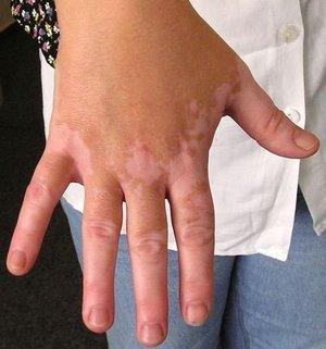 1272008737_vitiligo