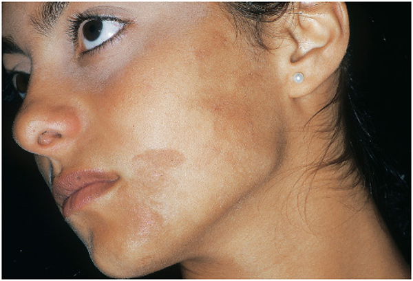 Pigmentation-on-Face