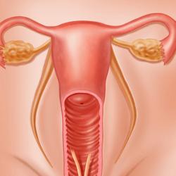 ginecology