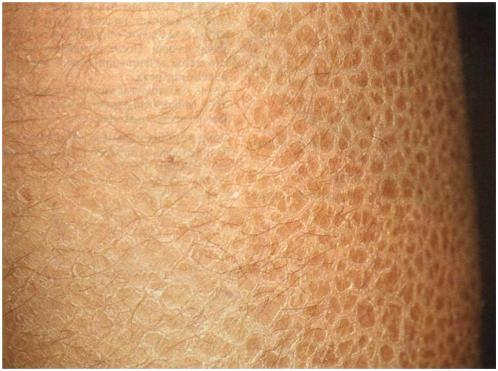 ichthyosis vulgaris 2