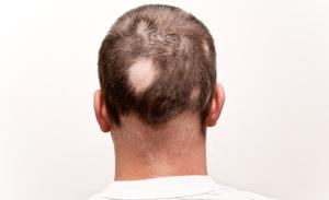 kreisrunder-haarausfall