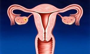lechenie-cervicita