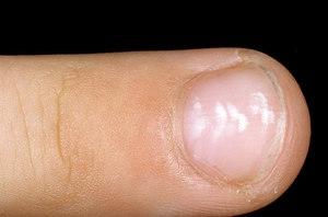leukonychia-1-a-foto