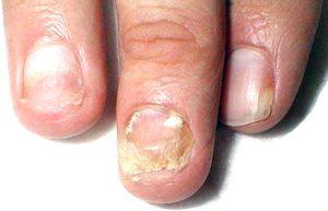 onychomycosis