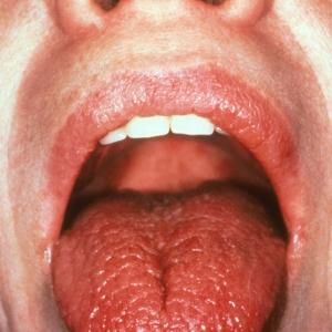 Щекочет язык